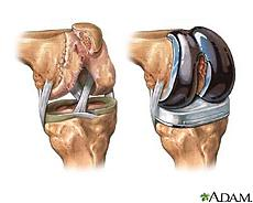 knee_replacement